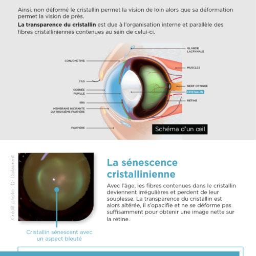 leaflet-senescence-cristallinienne-2